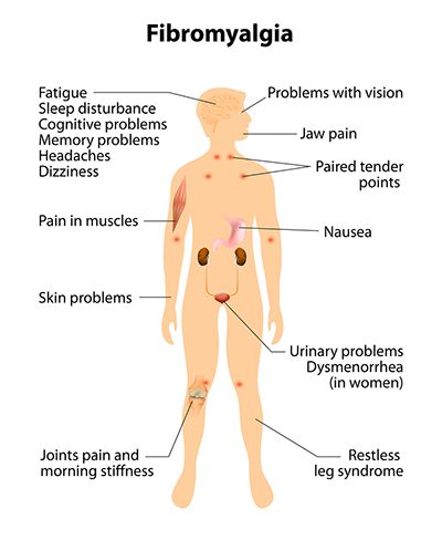 Fibromyalgia -Signs-And-Symptoms